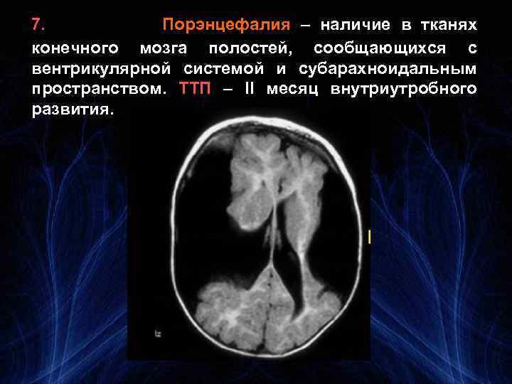 7. Порэнцефалия – наличие в тканях конечного мозга полостей, сообщающихся с вентрикулярной системой и