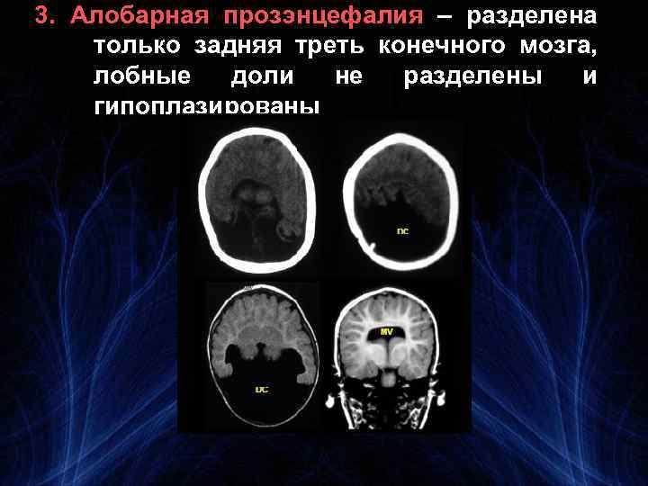 3. Алобарная прозэнцефалия – разделена только задняя треть конечного мозга, лобные доли не разделены