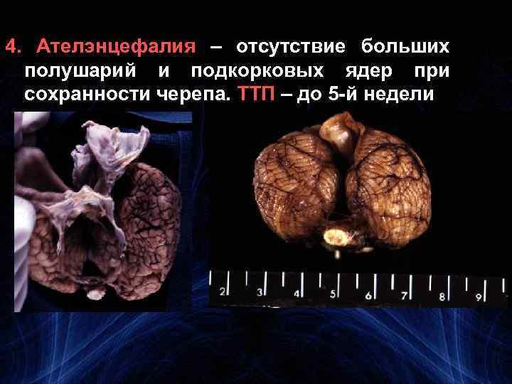 4. Ателэнцефалия – отсутствие больших полушарий и подкорковых ядер при сохранности черепа. ТТП –