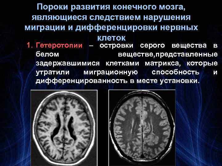 Пороки развития конечного мозга, являющиеся следствием нарушения миграции и дифференцировки нервных клеток 1. Гетеротопии