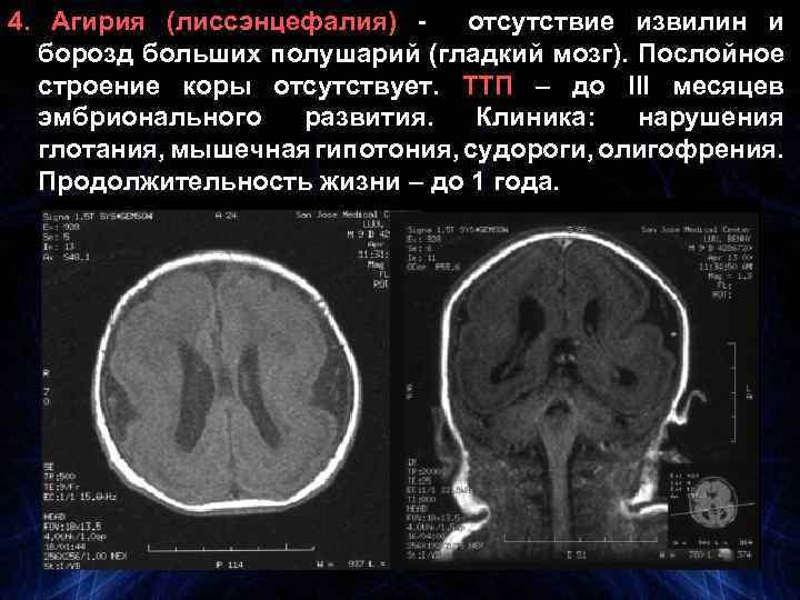 4. Агирия (лиссэнцефалия) отсутствие извилин и борозд больших полушарий (гладкий мозг). Послойное строение коры