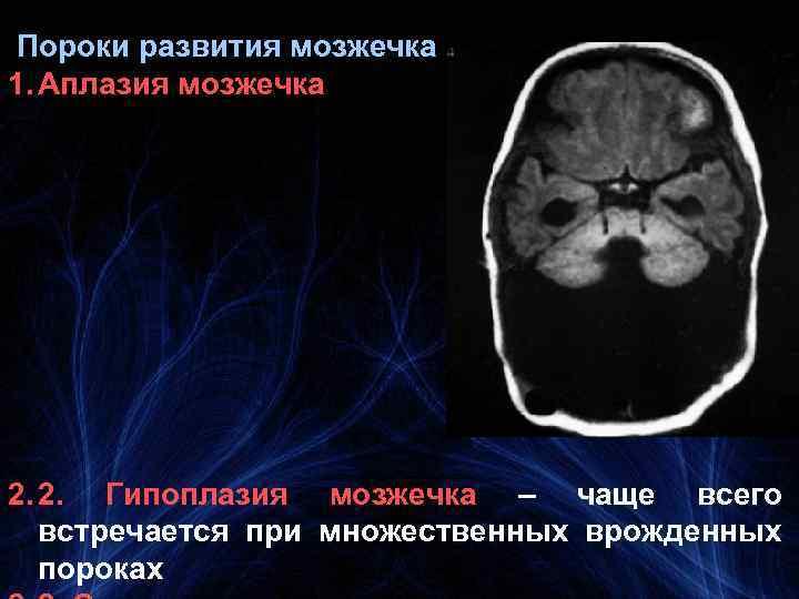 Пороки развития мозжечка 1. Аплазия мозжечка 2. 2. Гипоплазия мозжечка – чаще всего встречается