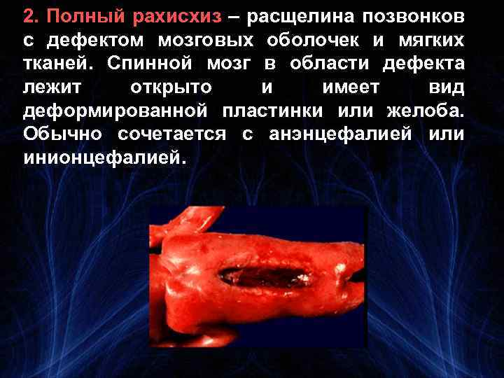 2. Полный рахисхиз – расщелина позвонков с дефектом мозговых оболочек и мягких тканей. Спинной