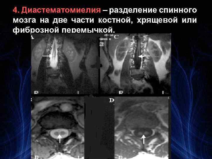 4. Диастематомиелия – разделение спинного мозга на две части костной, хрящевой или фиброзной перемычкой.