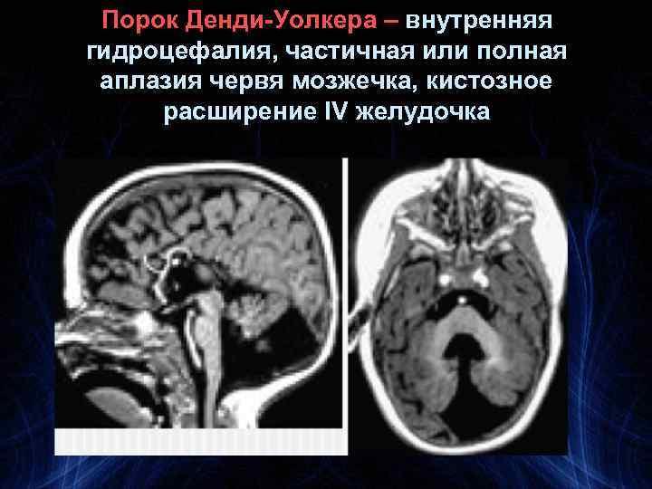 Порок Денди-Уолкера – внутренняя гидроцефалия, частичная или полная аплазия червя мозжечка, кистозное расширение IV