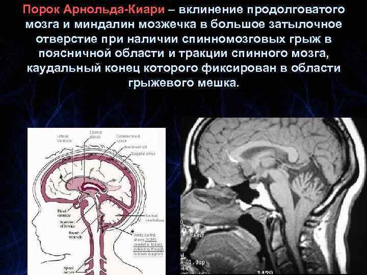 Порок Арнольда-Киари – вклинение продолговатого мозга и миндалин мозжечка в большое затылочное отверстие при