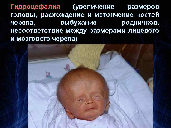 Гидроцефалия (увеличение размеров головы, расхождение и истончение костей черепа, выбухание родничков, несоответствие между размерами