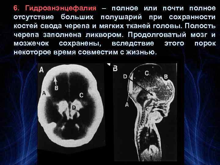 6. Гидроанэнцефалия – полное или почти полное отсутствие больших полушарий при сохранности костей свода