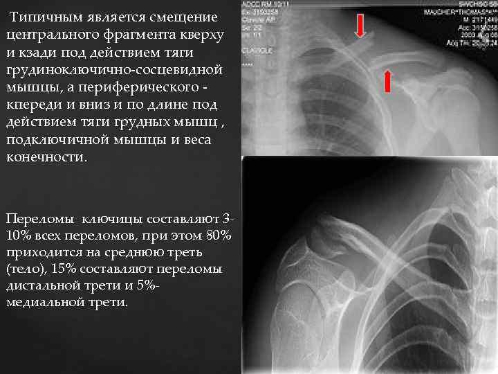 Типичным является смещение центрального фрагмента кверху и кзади под действием тяги грудиноключично-сосцевидной мышцы,