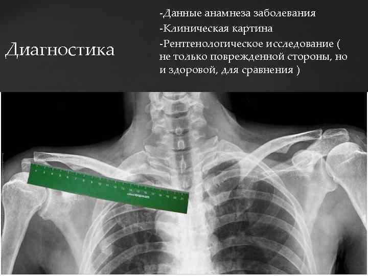 Диагностика -Данные анамнеза заболевания -Клиническая картина -Рентгенологическое исследование ( не только поврежденной стороны, но