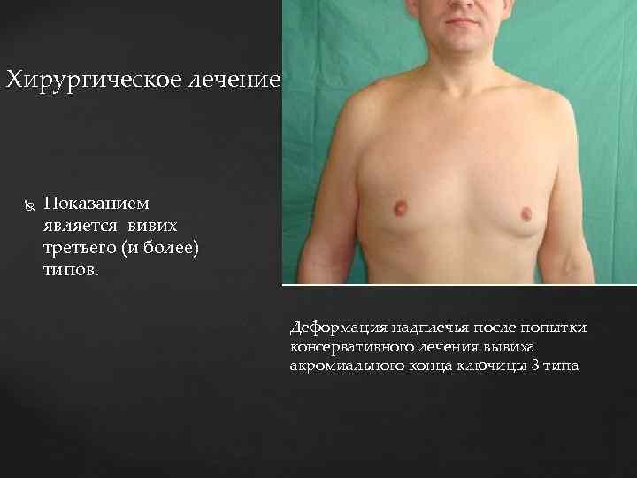 Хирургическое лечение Показанием является вивих третьего (и более) типов. Деформация надплечья после попытки консервативного