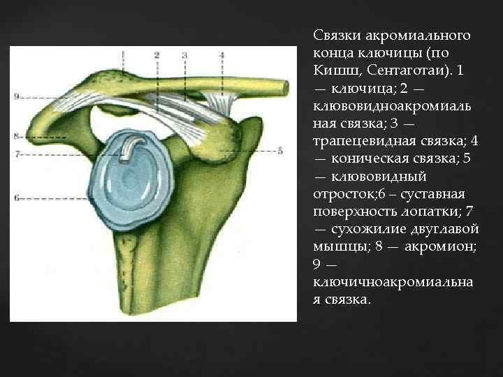 Связки акромиального конца ключицы (по Кишш, Сентаготаи). 1 — ключица; 2 — клювовидноакромиаль ная
