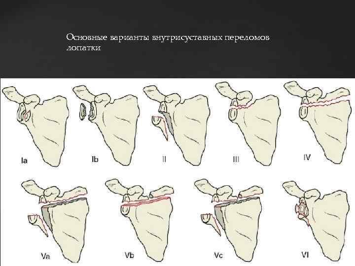Основные варианты внутрисуставных переломов лопатки