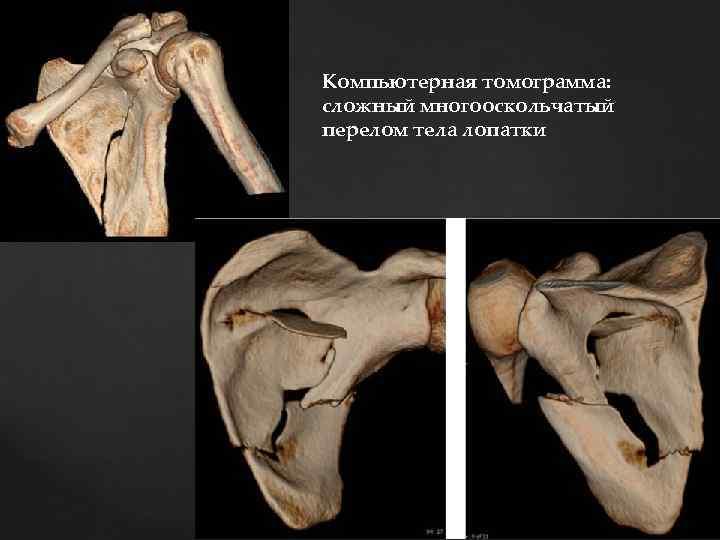 Компьютерная томограмма: сложный многооскольчатый перелом тела лопатки