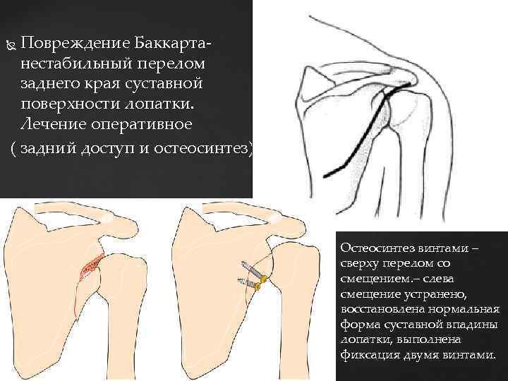 Повреждение Баккарта- нестабильный перелом заднего края суставной поверхности лопатки. Лечение оперативное ( задний доступ