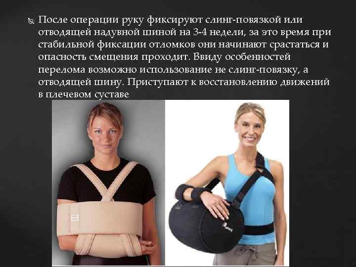После операции руку фиксируют слинг-повязкой или отводящей надувной шиной на 3 -4 недели,