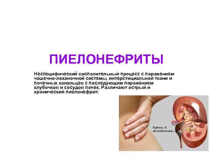 ПИЕЛОНЕФРИТЫ Неспецифический воспалительный процесс с поражением чашечно-лоханочной системы, интерстициальной ткани и почечных канальцев с