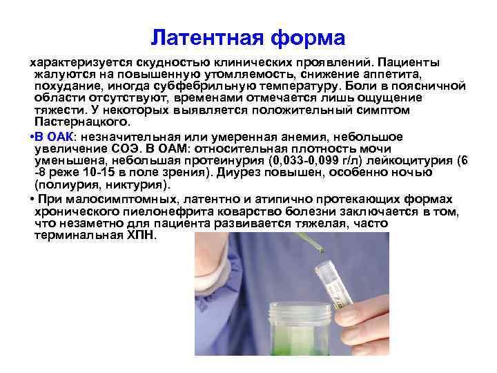Латентная форма характеризуется скудностью клинических проявлений. Пациенты жалуются на повышенную утомляемость, снижение аппетита, похудание,
