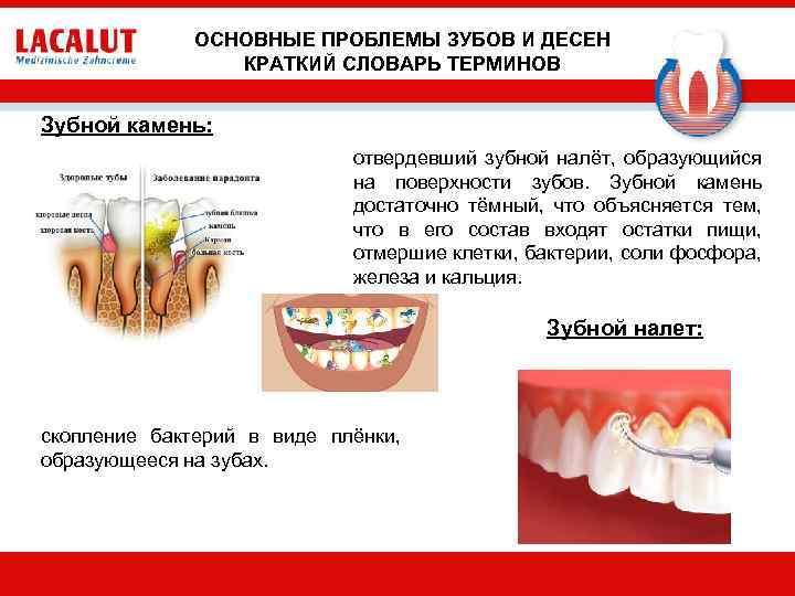 ОСНОВНЫЕ ПРОБЛЕМЫ ЗУБОВ И ДЕСЕН КРАТКИЙ СЛОВАРЬ ТЕРМИНОВ Зубной камень: отвердевший зубной налёт, образующийся