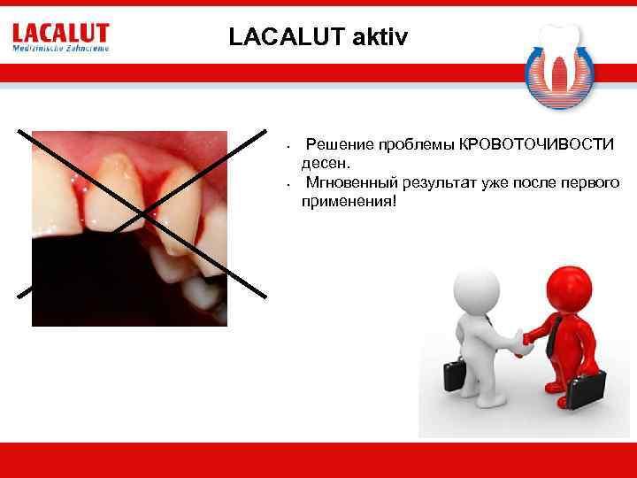 LACALUT aktiv • • Решение проблемы КРОВОТОЧИВОСТИ десен. Мгновенный результат уже после первого применения!