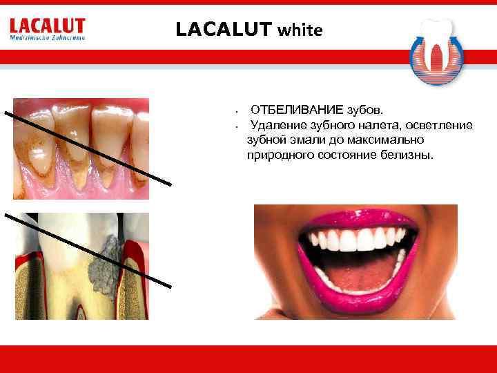 LACALUT white • • ОТБЕЛИВАНИЕ зубов. Удаление зубного налета, осветление зубной эмали до максимально