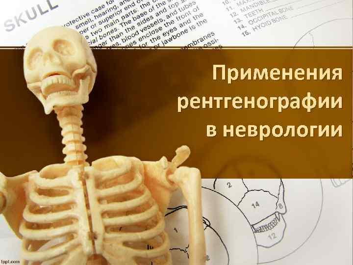Применения рентгенографии в неврологии