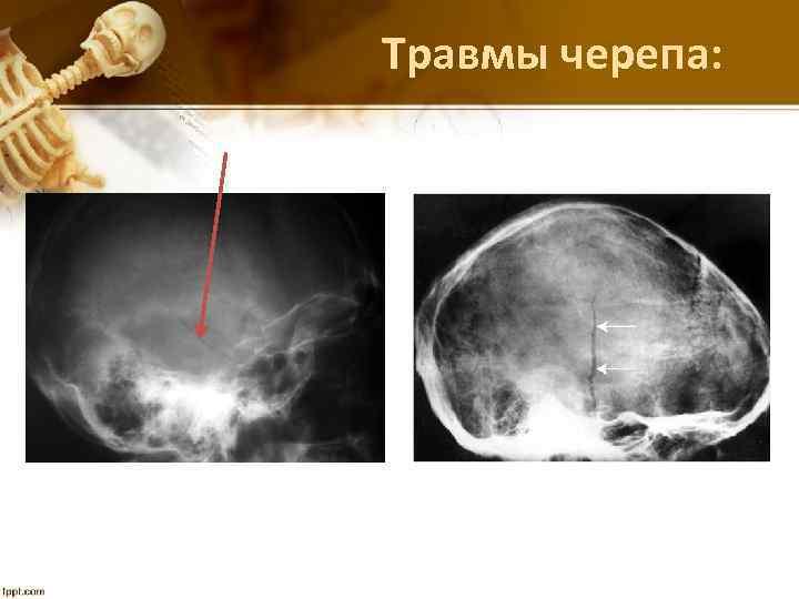 Травмы черепа: