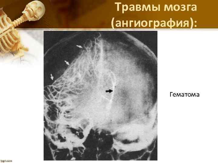 Травмы мозга (ангиография): Гематома
