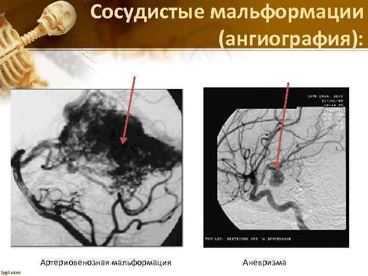 Сосудистые мальформации (ангиография): Артериовенозная мальформация Аневризма