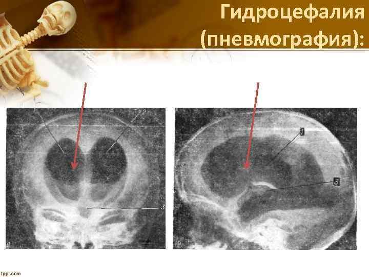 Гидроцефалия (пневмография):