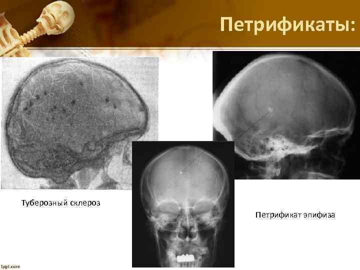 Петрификаты: Туберозный склероз Петрификат эпифиза