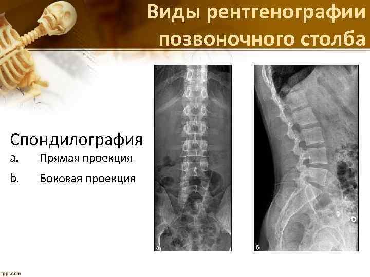 Виды рентгенографии позвоночного столба Спондилография a. Прямая проекция b. Боковая проекция