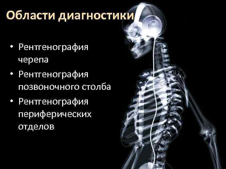Области диагностики • Рентгенография черепа • Рентгенография позвоночного столба • Рентгенография периферических отделов