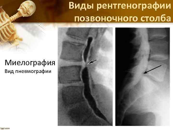 Виды рентгенографии позвоночного столба Миелография Вид пневмографии