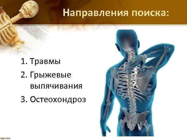 Направления поиска: 1. Травмы 2. Грыжевые выпячивания 3. Остеохондроз
