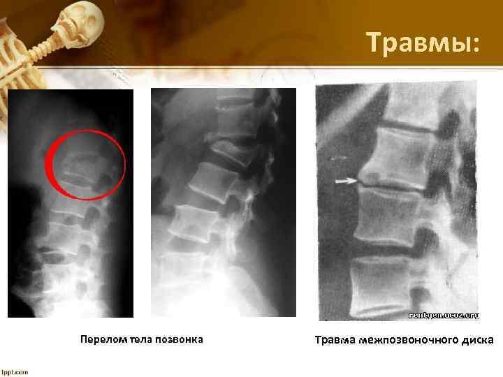 Травмы: Перелом тела позвонка Травма межпозвоночного диска