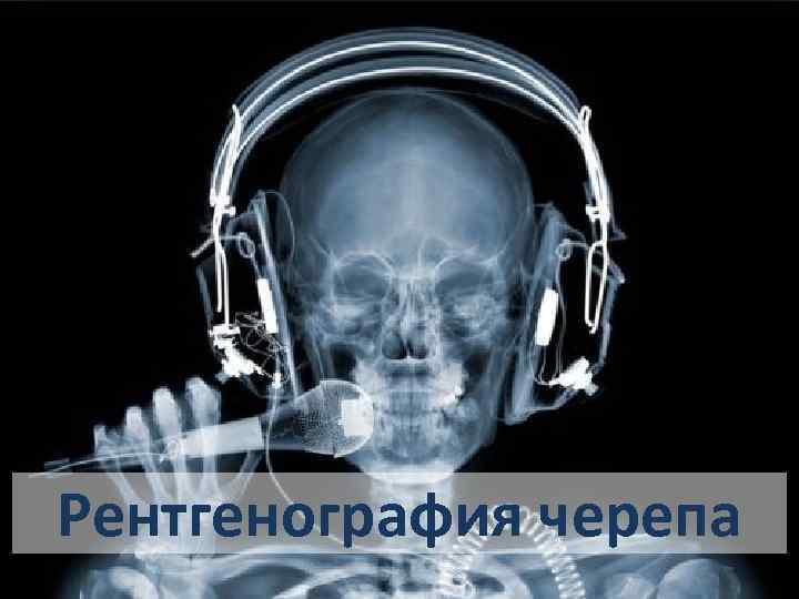 Рентгенография черепа