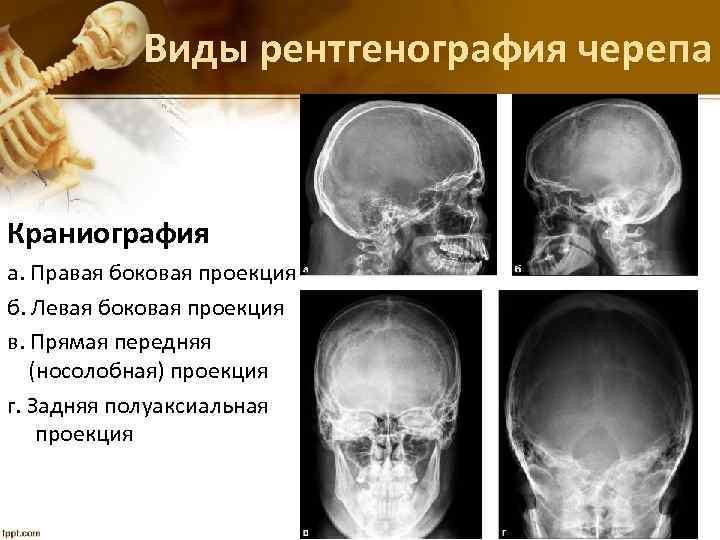 Виды рентгенография черепа Краниография а. Правая боковая проекция б. Левая боковая проекция в. Прямая