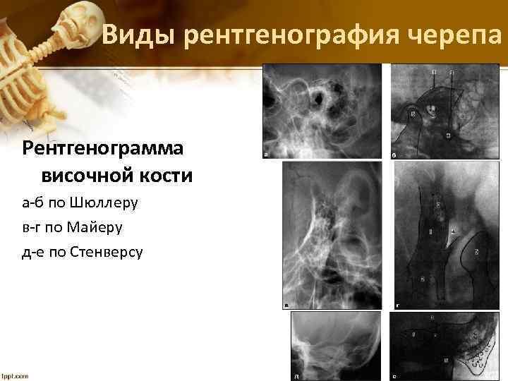 Виды рентгенография черепа Рентгенограмма височной кости а-б по Шюллеру в-г по Майеру д-е по
