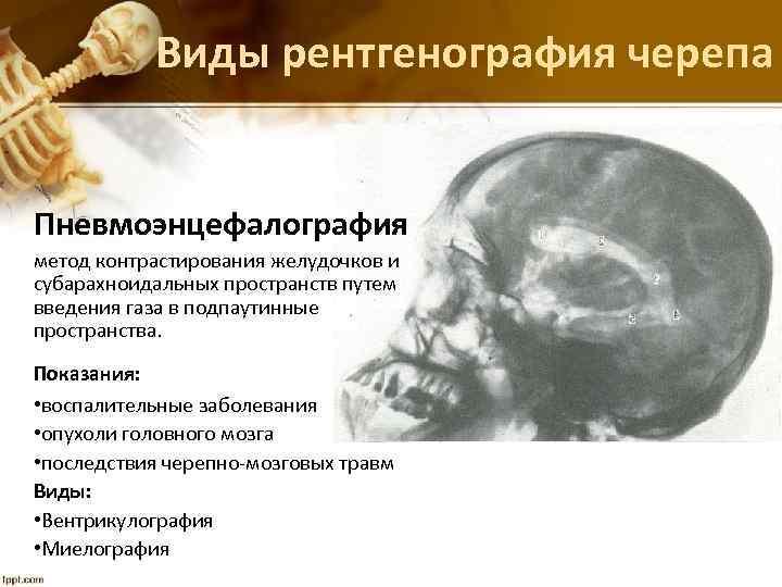Виды рентгенография черепа Пневмоэнцефалография метод контрастирования желудочков и субарахноидальных пространств путем введения газа в