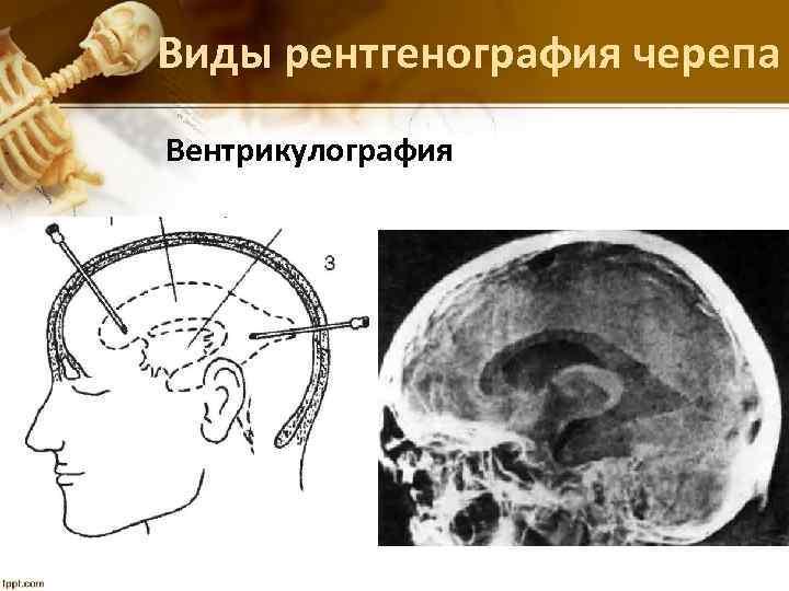 Виды рентгенография черепа Вентрикулография