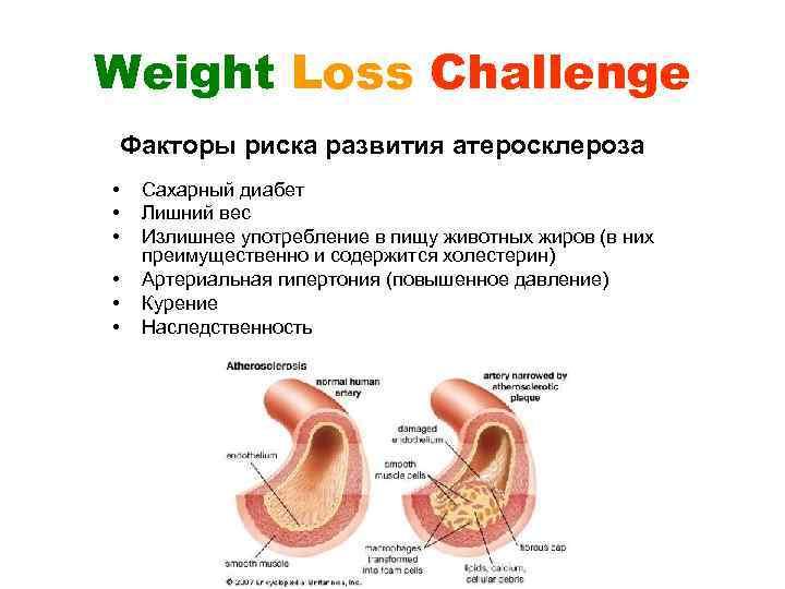 Weight Loss Challenge Факторы риска развития атеросклероза • • • Сахарный диабет Лишний вес