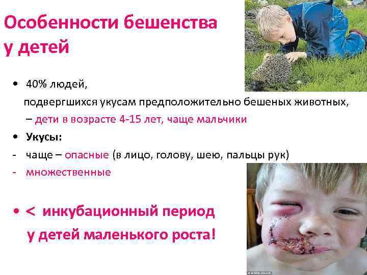 Особенности бешенства у детей • 40% людей, подвергшихся укусам предположительно бешеных животных, – дети