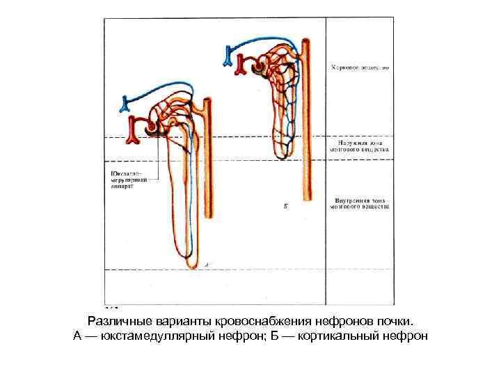 Различные варианты кровоснабжения нефронов почки. А — юкстамедуллярный нефрон; Б — кортикальный нефрон