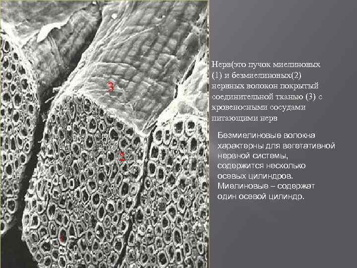 Нерв(это пучок миелиновых (1) и безмиелиновых(2) нервных волокон покрытый соединительной тканью (3) с кровеносными
