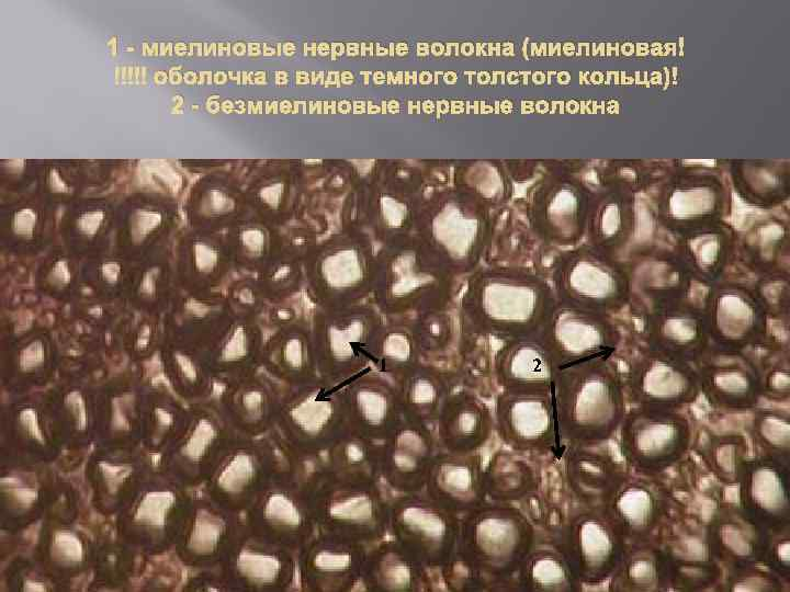 1 - миелиновые нервные волокна (миелиновая оболочка в виде темного толстого кольца) 2 -
