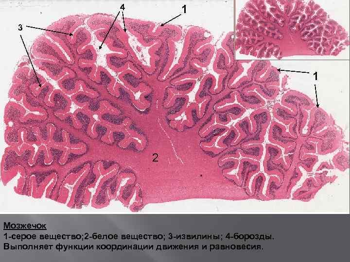 4 1 3 1 2 Мозжечок 1 -серое вещество; 2 -белое вещество; 3 -извилины;