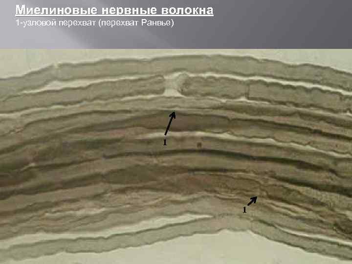 Миелиновые нервные волокна 1 -узловой перехват (перехват Ранвье) 11 1 1