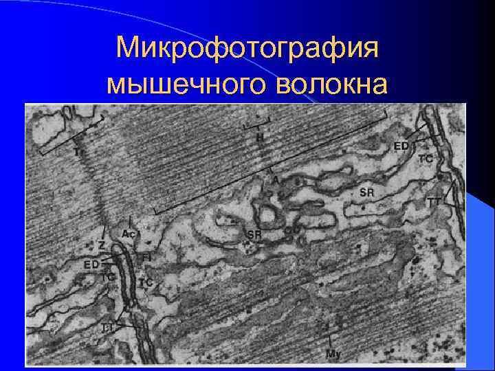 Микрофотография мышечного волокна