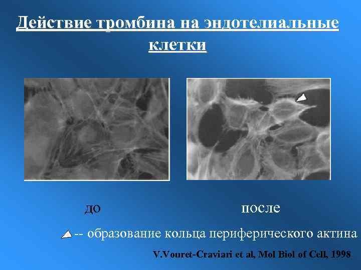 Действие тромбина на эндотелиальные клетки до после -- образование кольца периферического актина V. Vouret-Craviari